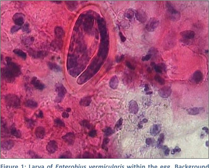 enterobius vermicularis vulvovaginitis cancer cerebral esperanza de vida