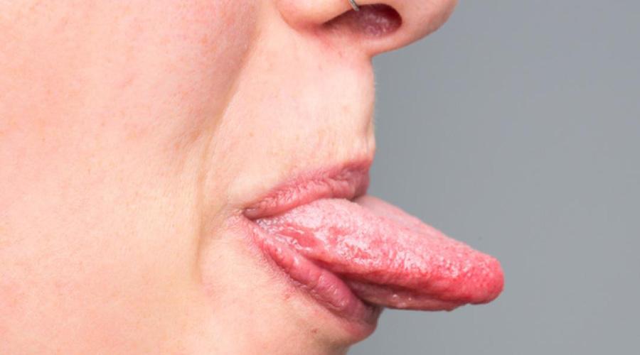 Cum iti dai seama ca te-ai infectat cu virusul HPV
