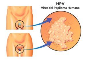 virus del papiloma humano vph 6 y 11