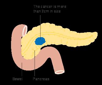 douleur uterus papillomavirus hpv-positive oropharyngeal cancer treatment