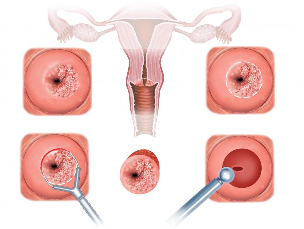 cancer feminin simptome