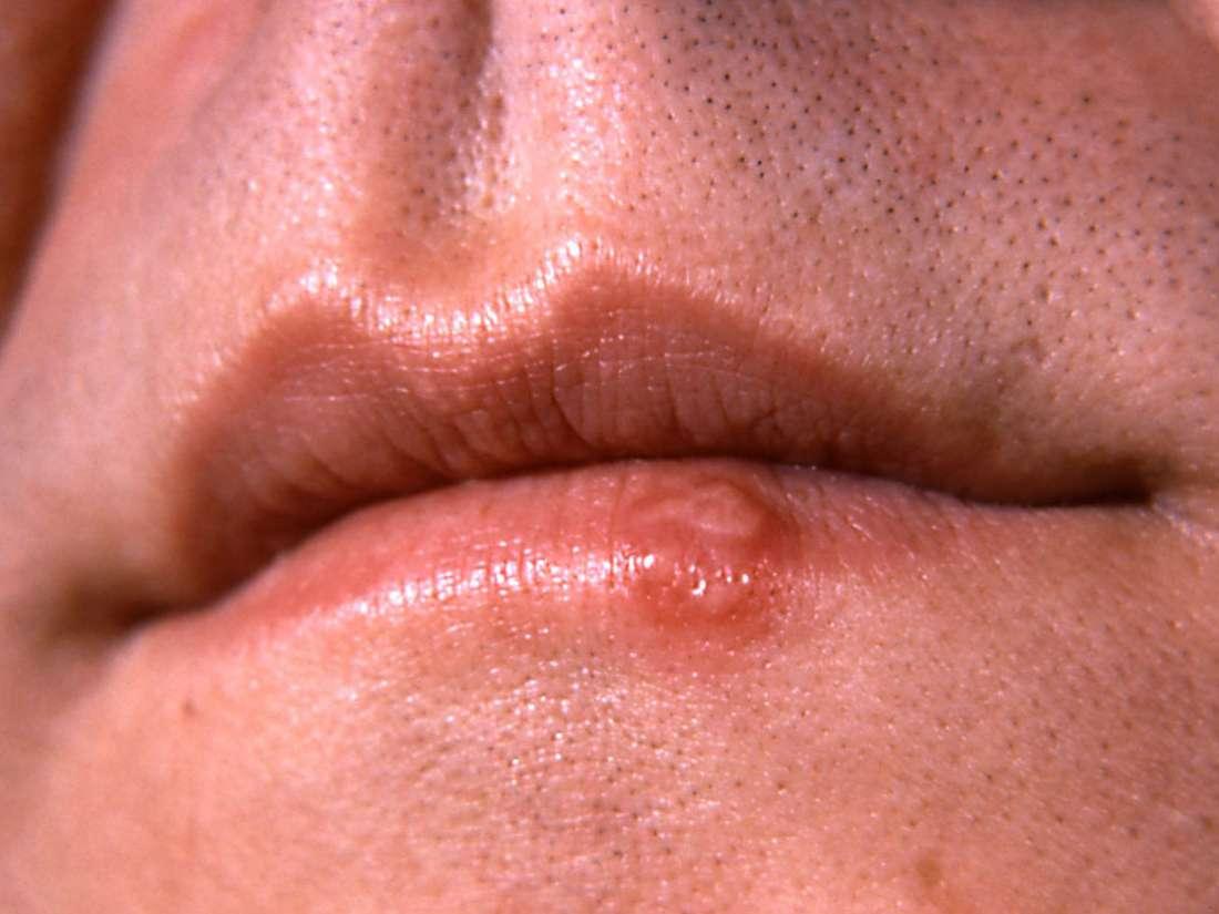 hpv throat cancer treatment cancer cerebral pronostico vida