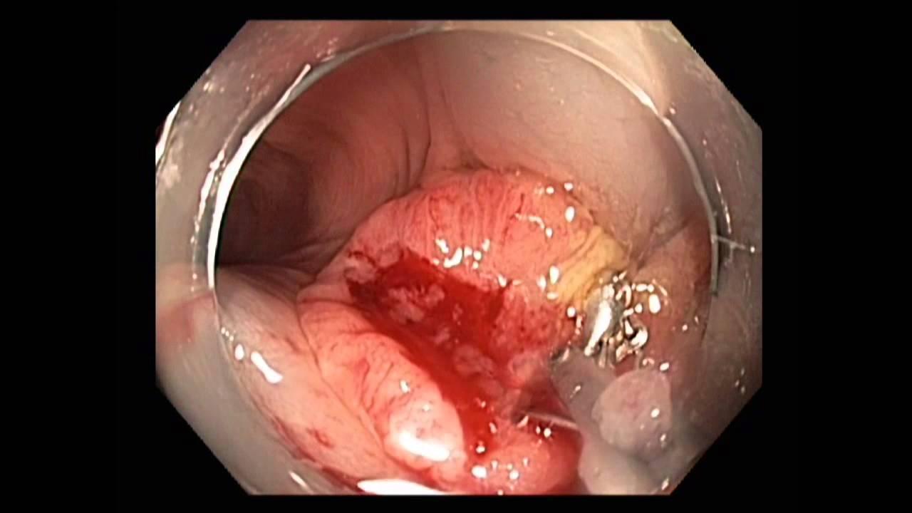 cancer colon sigmoide