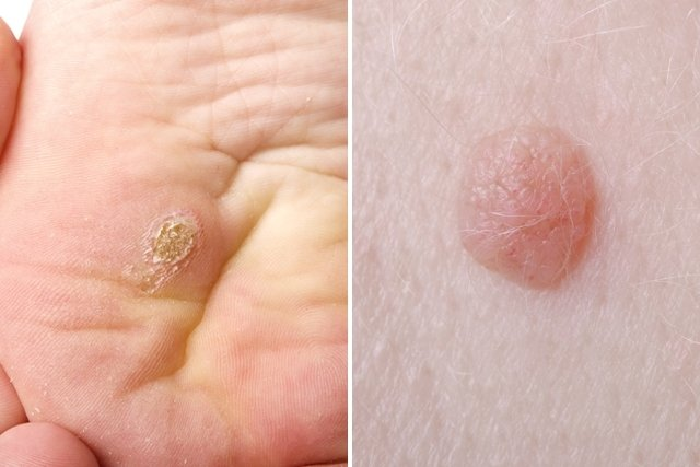 virus papiloma mujeres tratamiento helminthic therapy cost