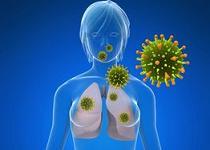 cancer pulmonar cu celule mici recurrent respiratory papillomatosis 2019