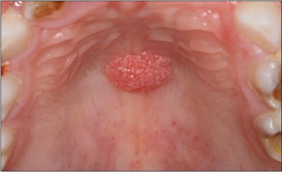 squamous papilloma transmission
