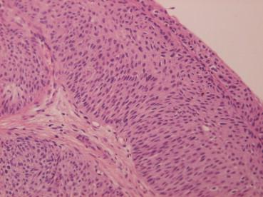 cancer cervical uter