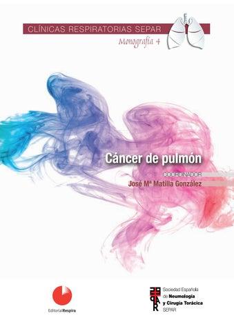 Diagnosticul cancerului pulmonar