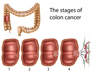 rectal cancer vs piles hookworm therapy multiple sclerosis