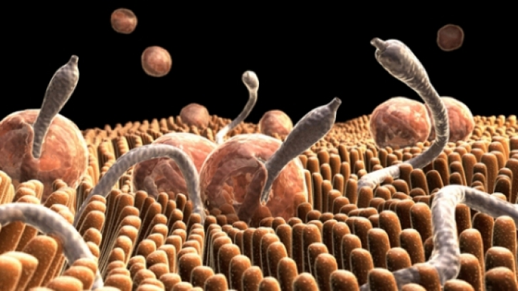 paraziti intestinali simptome neurologice cancer endometrial grr