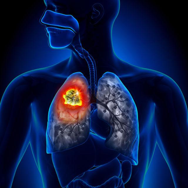 cancer pulmonar cu celule mici