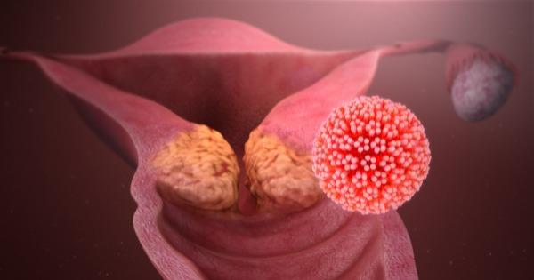 hpv que causa cancer de utero
