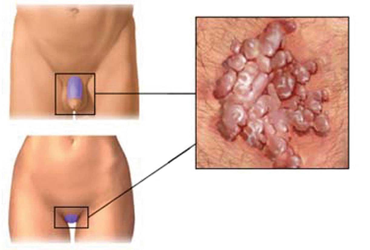 enterobius vermicularis infection hpv viren manner symptome