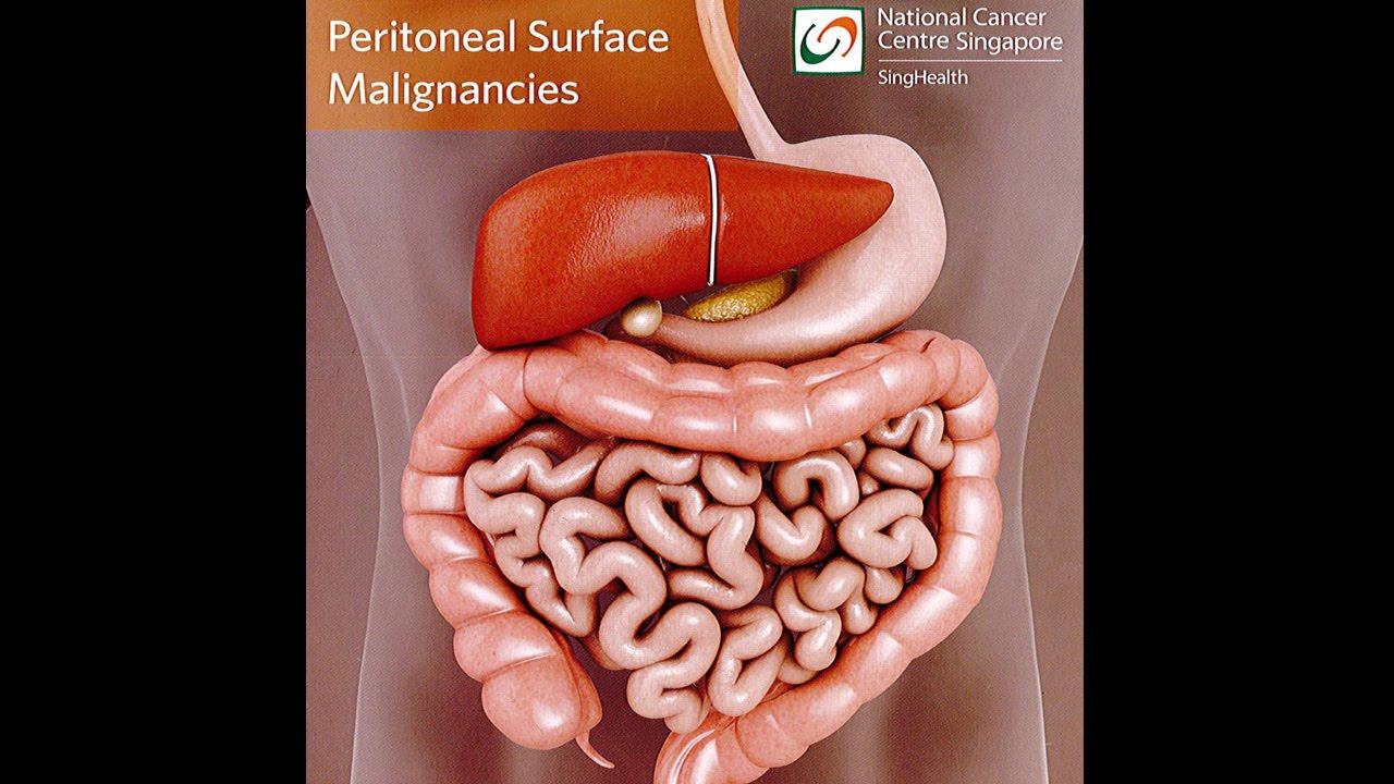 cancer peritoneal