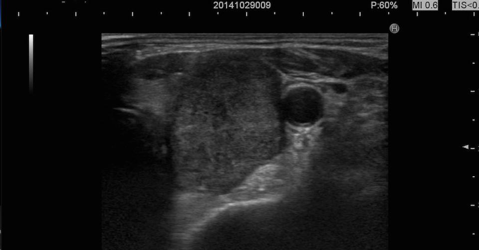 papilloma alla tiroide