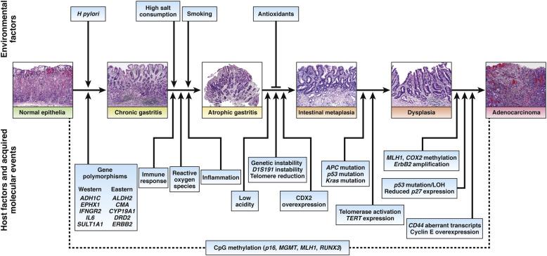 abdominal cancer gene papilloma virus verruche viso
