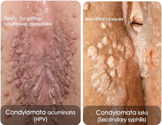Infectia cu HPV | Virusul HPV | Vaccinare HPV Romania