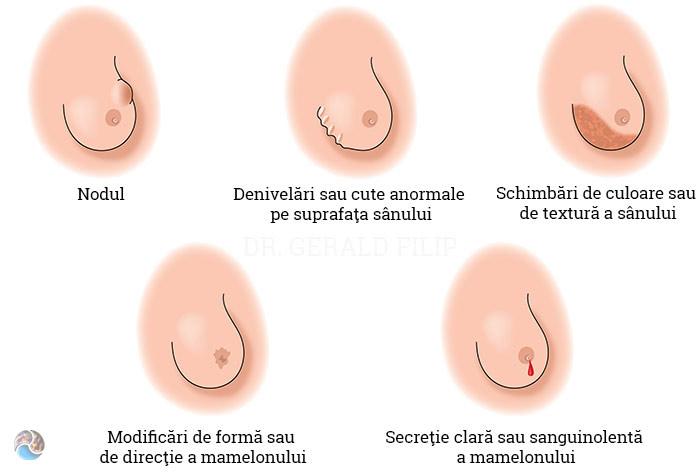 simptome cancerul de san
