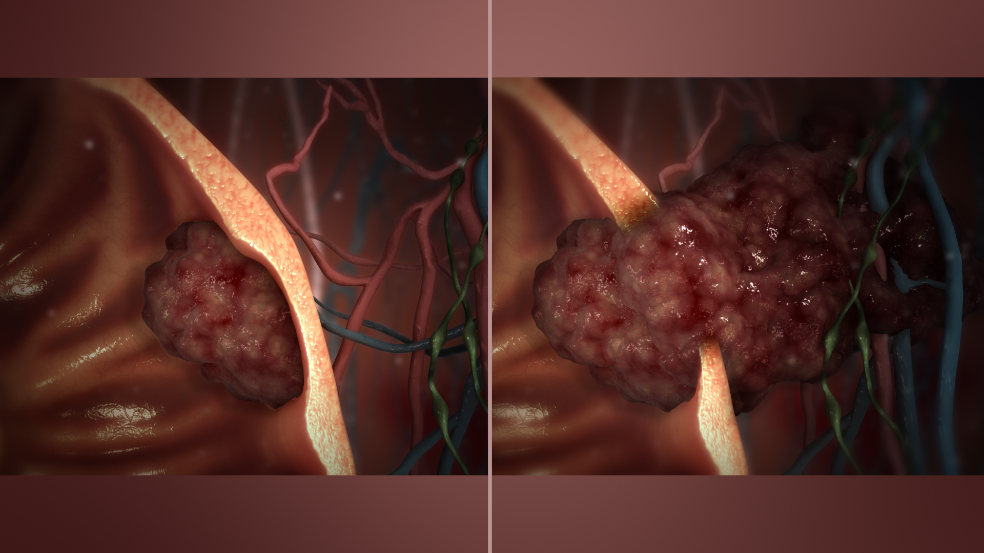 malignant neoplasm cancer condyloma acuminata genital warts