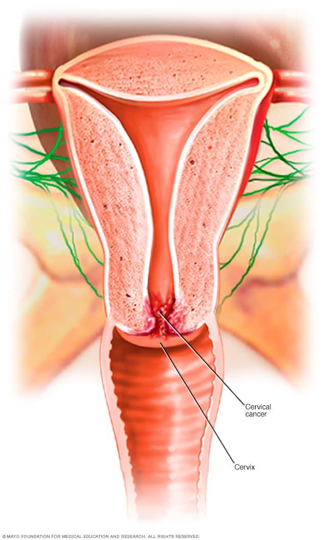 nikvorm pret catena cancer testicular malign