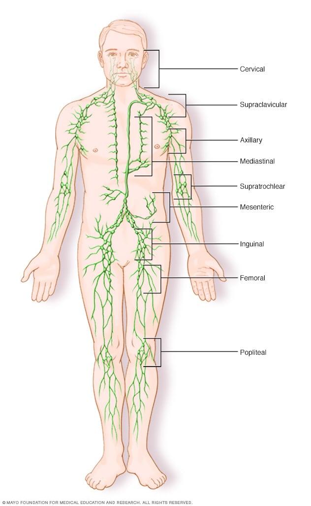 Cancerul Hodgkin (limfomul Hodgkin)