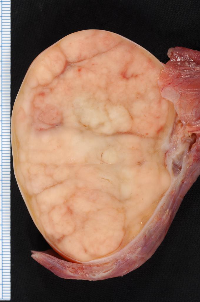 tumorile testiculareI