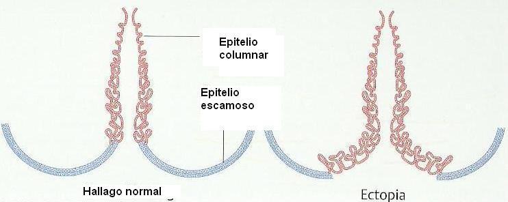 Cand varicele vaginale in timpul sarcinii troksevazin frotiu