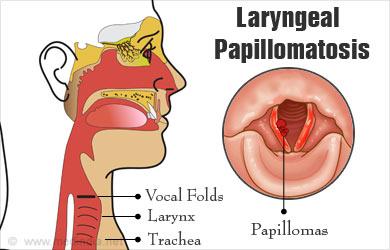 respiratory papillomatosis symptoms human papillomavirus vaccine drug
