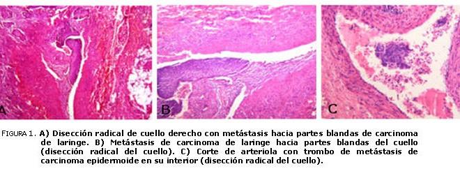 cancer epidermoide laringe multiple papillomas