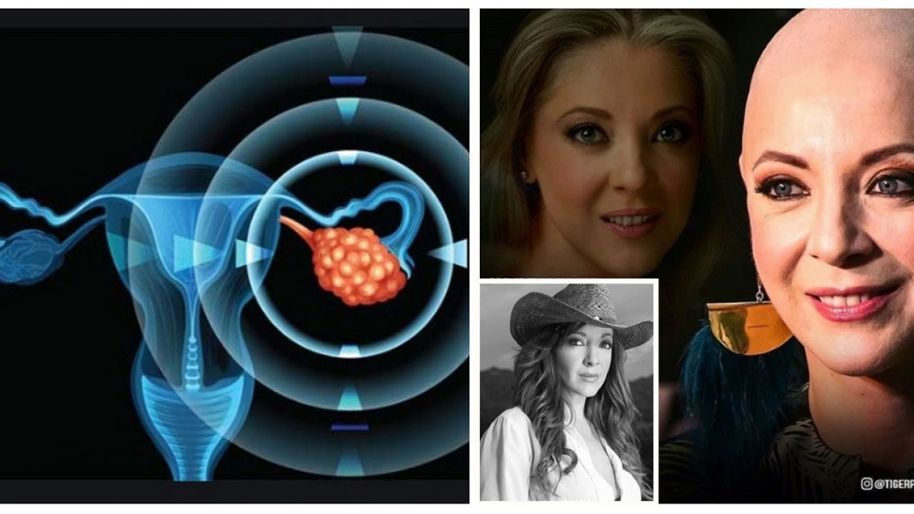 cancer ovarian metastaza simptome
