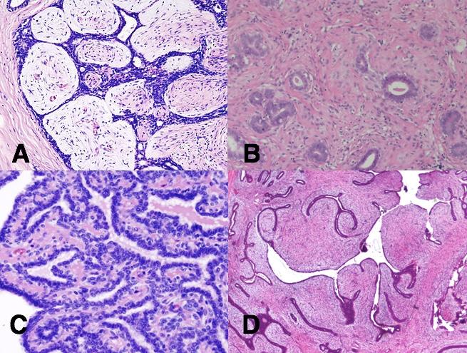 papillomatosis breast tissue