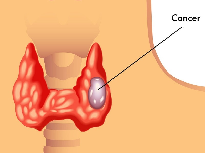 hpv and thyroid cancer