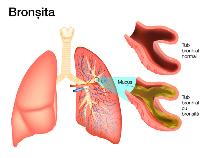 Bronsita: cauze, simptome, tratament