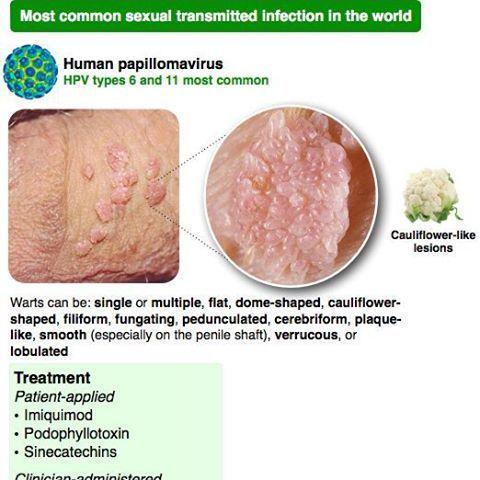 papillomavirus in human