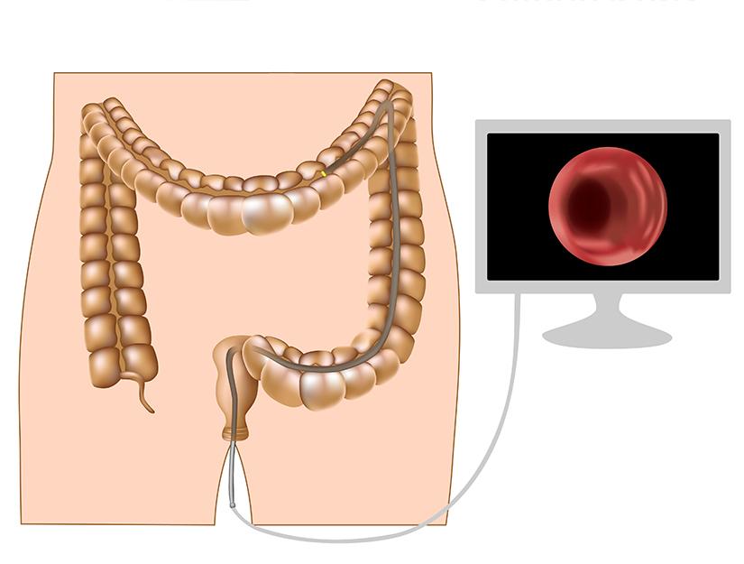 sintomi papilloma virus in bocca