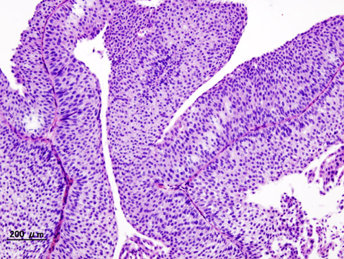 cancer maligne vessie cancerul lingual simptome