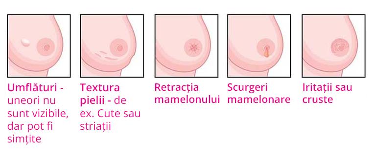Simptomele cancerului de sân