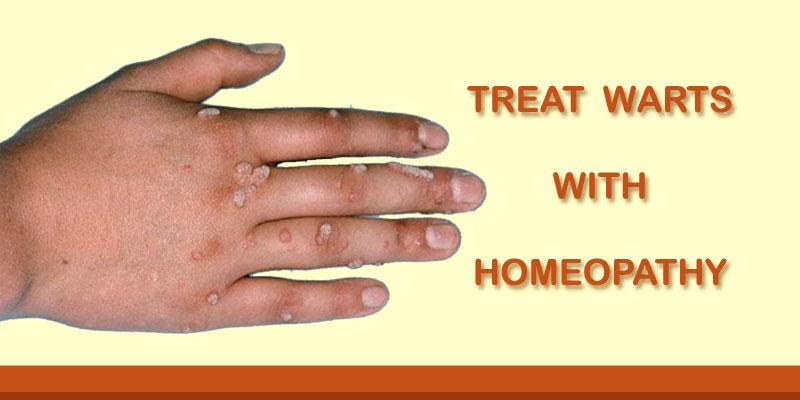 wart treatment hand