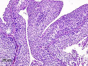 laryngeal papillomatosis triad vierme plat parazit la om