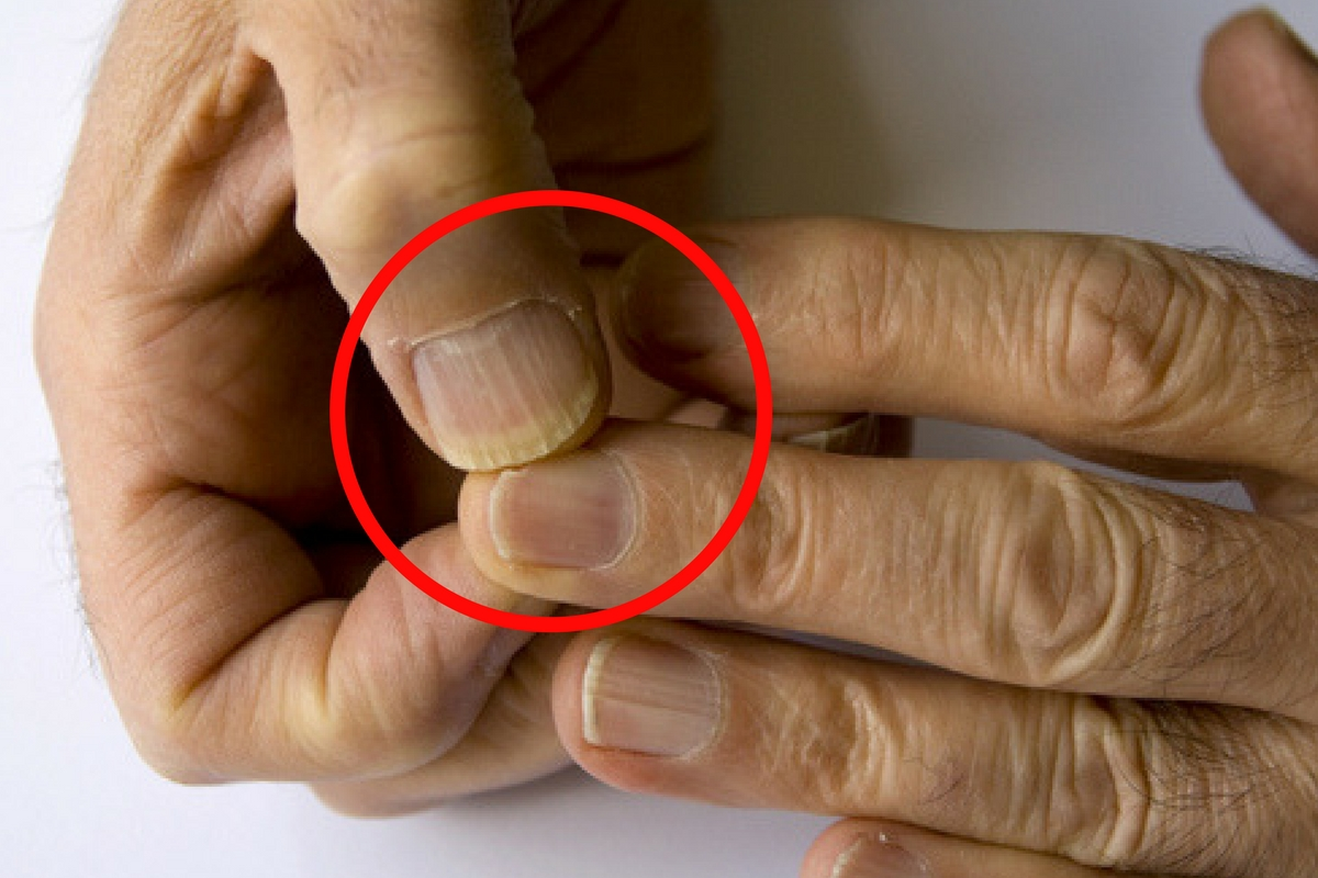 Tumorile maligne ale unghiilor - semne şi simptome