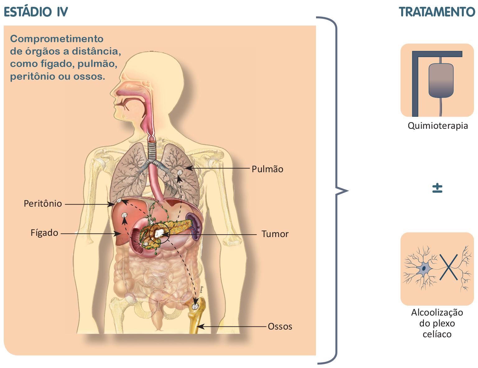 Cancerul peritoneal primar, secundar, simptome, Etape și multe altele