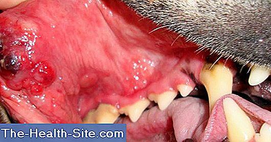 human papillomavirus yes or no cancer de colon gatos