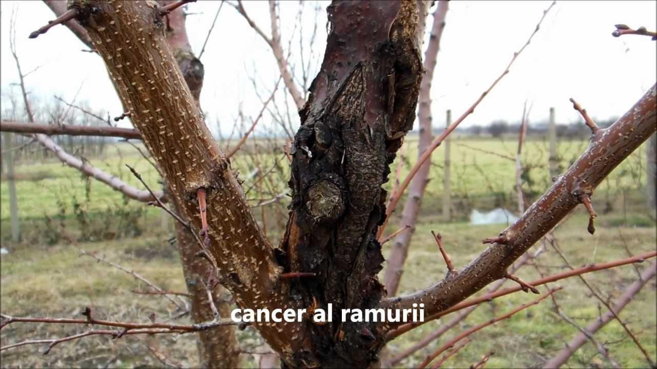 cancerul bacterian tratament