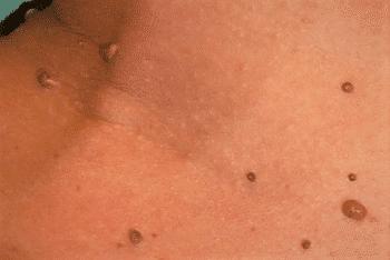 papillomatosis cervix