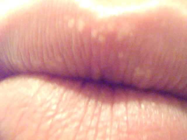 hpv levres bouche