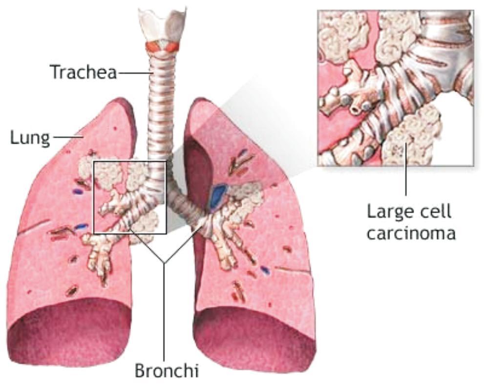 Asistent Medical Generalist: CANCERUL BRONHOPULMONAR