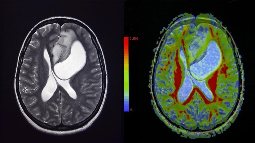 cancer cerebral fases