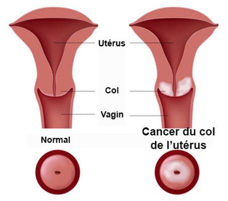 Riscul progresiei CIN3 spre carcinom invaziv | Eurocytology