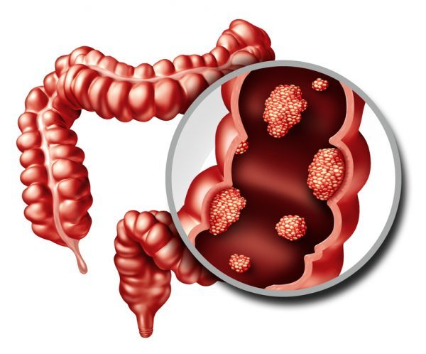 cancer de colon heces con sangre sarcoma cancer specialists