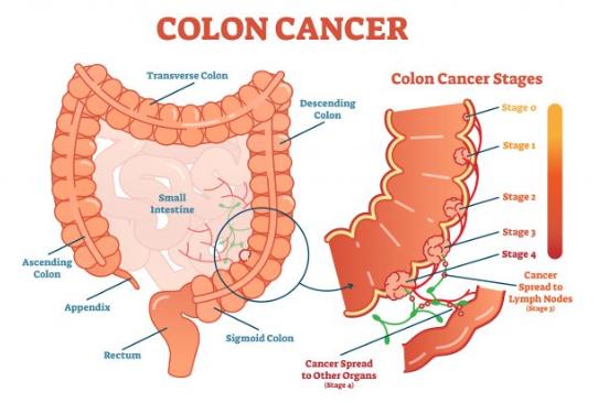 cancer de colon que es